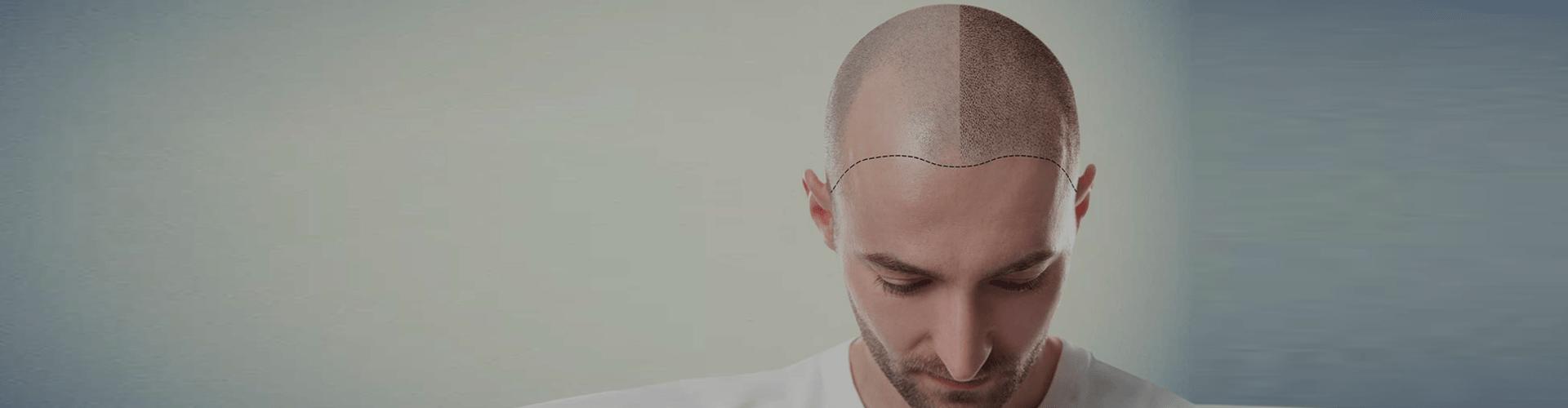 A bald person.