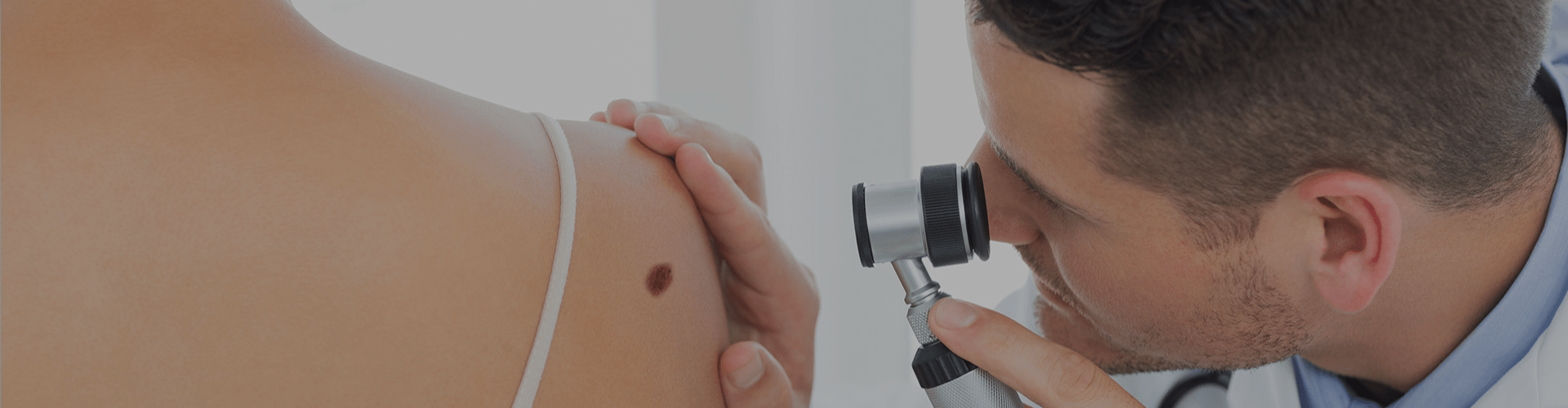 Doctor checking the mole on a person's back
