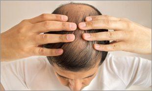 hair-fall-rx-treatment